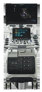 Ultrasonografia przyszłości w Bydgoszczy